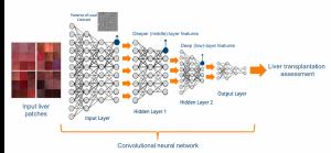 Convolutional neural network for liver transplant assessment